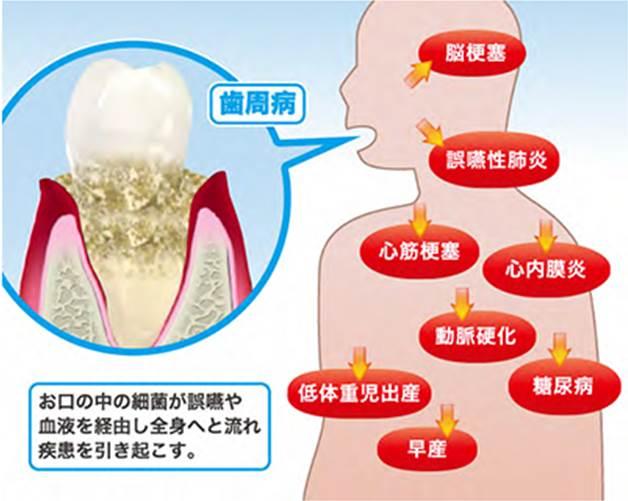 歯周病と全身疾患関係図