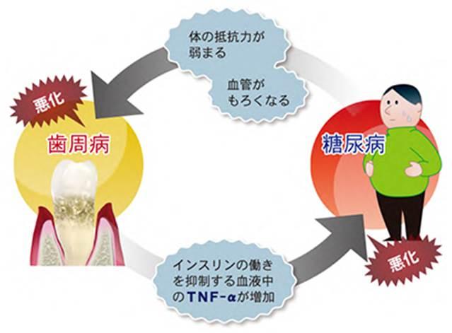 歯周病と糖尿病の関係図